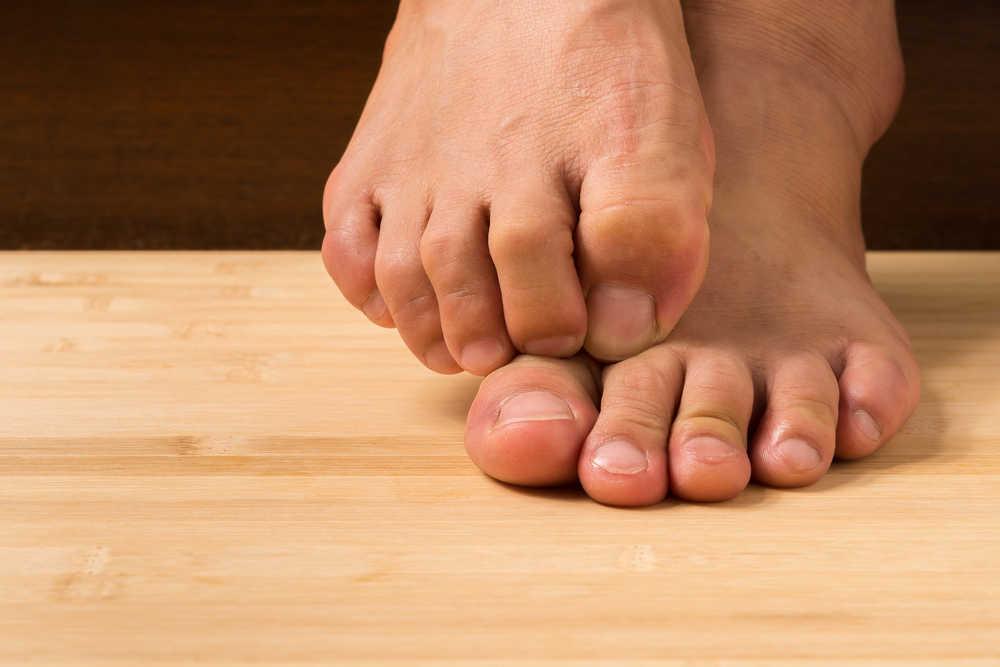 ¿Cómo lidiar con el pie de atleta?